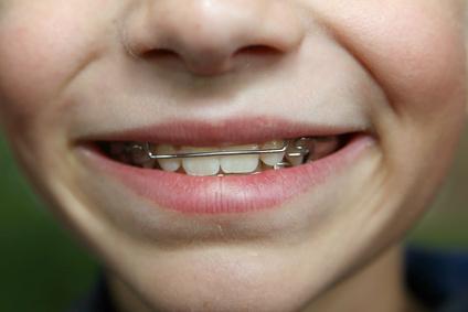 Blasen Mit Zahnspange